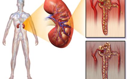 Complicațiile rinichilor: nefropatia diabetică