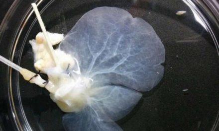 Tehnici de bioinginerie folosite pentru producerea ficatului transplantabil în laborator