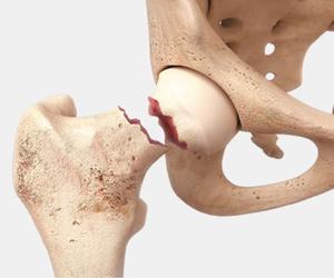 Tehnica revoluționară de abord în implantarea protezei de șold CORAIL Hip System, din 2017 și în România