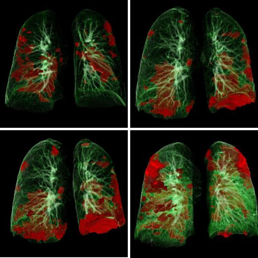 Leziunile pulmonare și cardiace post COVID-19 se pot ameliora în timp