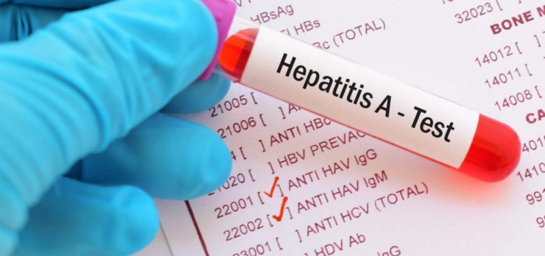 Sibiul, judeţul cu cei mai mulţi pacienţi identificaţi cu hepatită virală de tip A în 2020