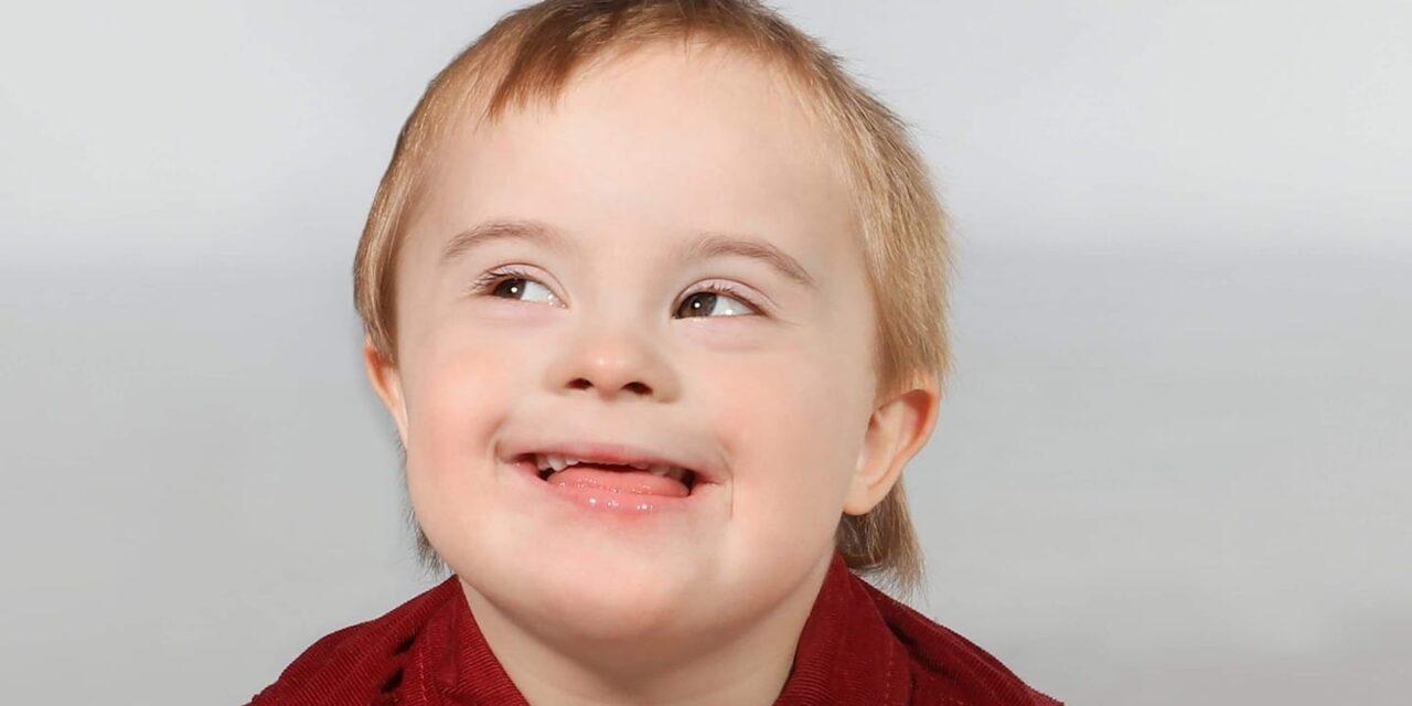Studiu: Persoanele cu sindrom Down prezintă un risc foarte mare de deces din cauza COVID-19