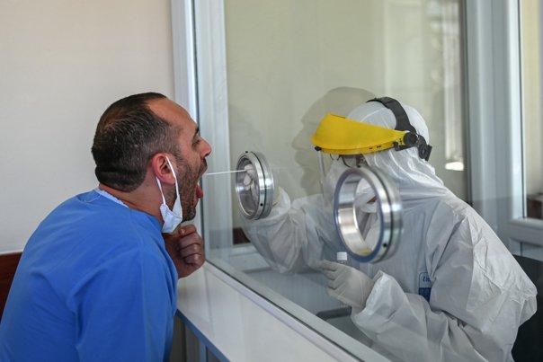 Studiu desfăşurat de experţi din 38 de ţări privind pierderea mirosului şi gustului provocată de COVID-19