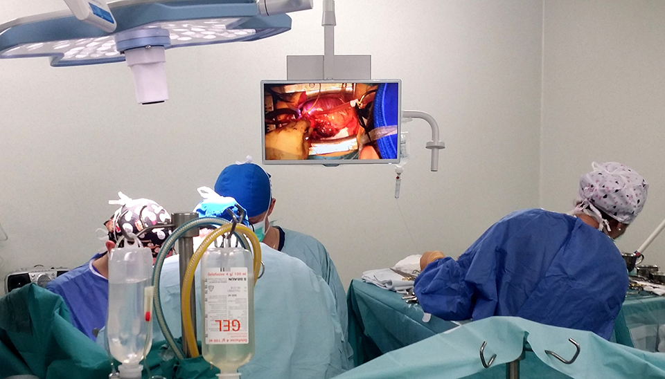 Procedură complexă hibridă de endoprotezare a aortei toracice rupte, în  premieră naţională, la IUBCvT Târgu Mureş