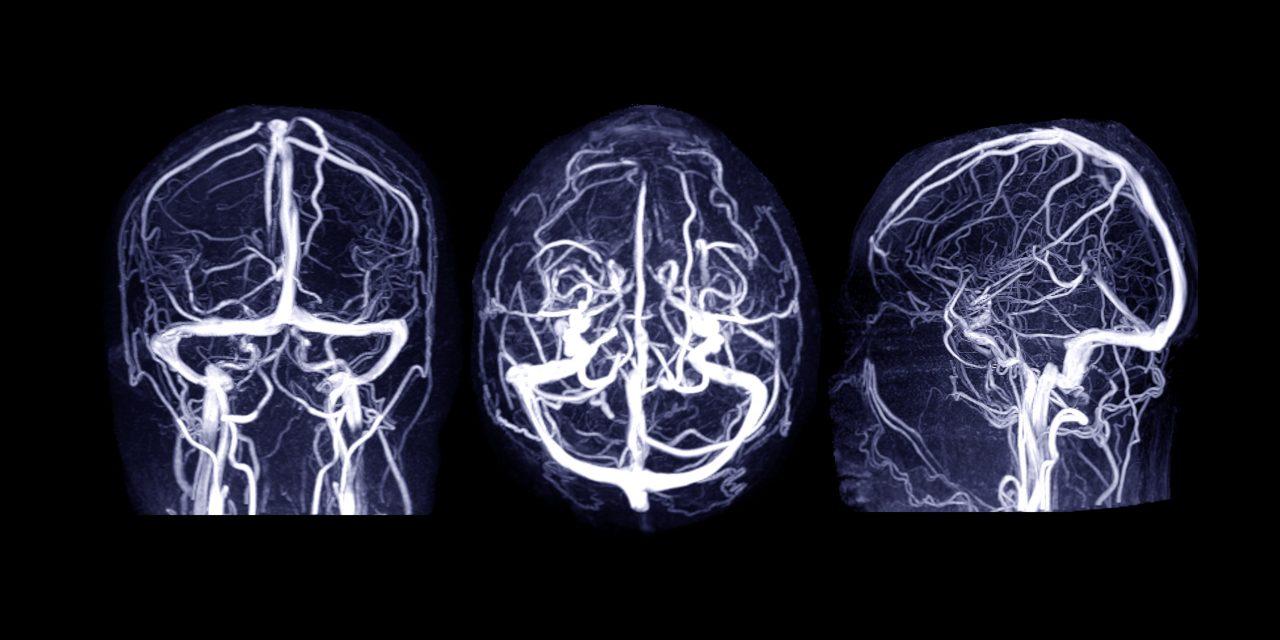 EMA: 169 de cazuri de tromboză venoasă cerebrală, înregistrate la 34 de milioane de doze de vaccin AstraZeneca administrate
