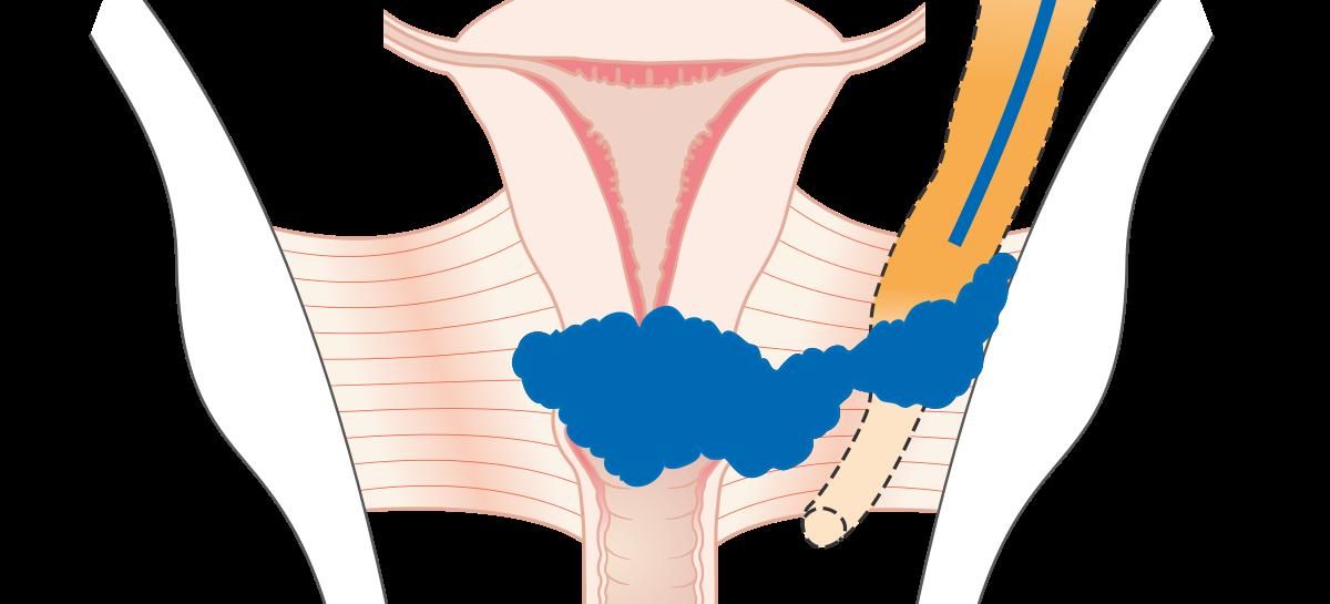 Mureş: Proiect de peste 50,8 milioane de lei pentru prevenţia şi tratamentul cancerului de col uterin