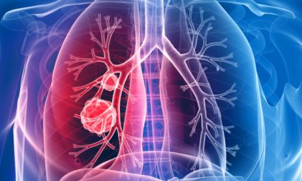 Durvalumab crește rata de supraviețuire în cancerul pulmonar fără celule mici