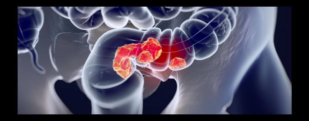 Cancerul colorectal – cum îl depistăm la timp