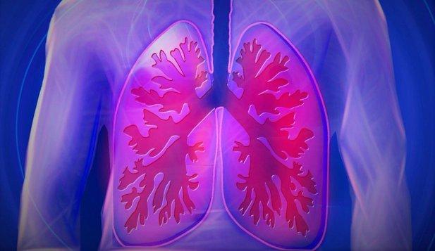 1 august, Ziua Mondială de Luptă împotriva Cancerului Pulmonar