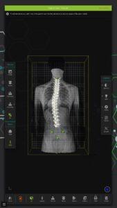 Cardiologie Moderna, Cel mai performant sistem de investigare posturală SPINE 3D