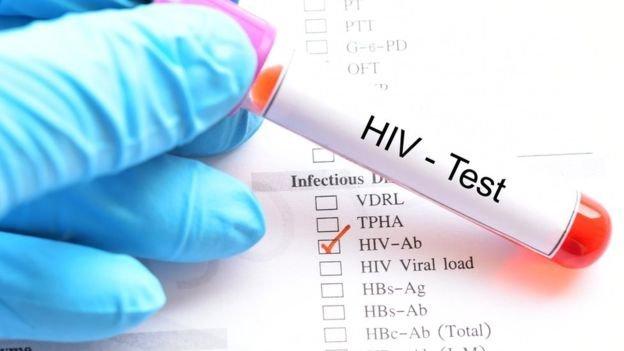 Agenţii sanitare europene: Este necesară efectuarea mai multor teste pentru detectarea timpurie a infecţiei HIV