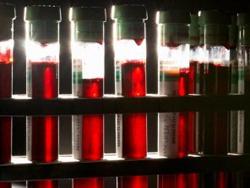 Teste rapide pentru pacienţii cu risc crescut de hepatita C la Bucureşti, Cluj-Napoca, Iaşi şi Timişoara