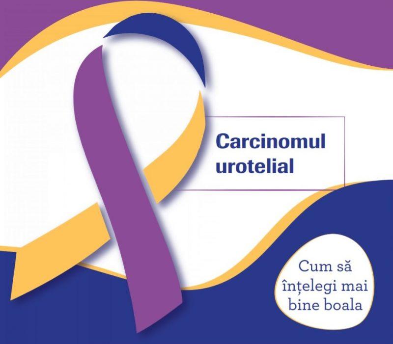 Pacienții cu cancer de vezică urinară beneficiază acum de tratament compensat cu imunoterapie oncologică